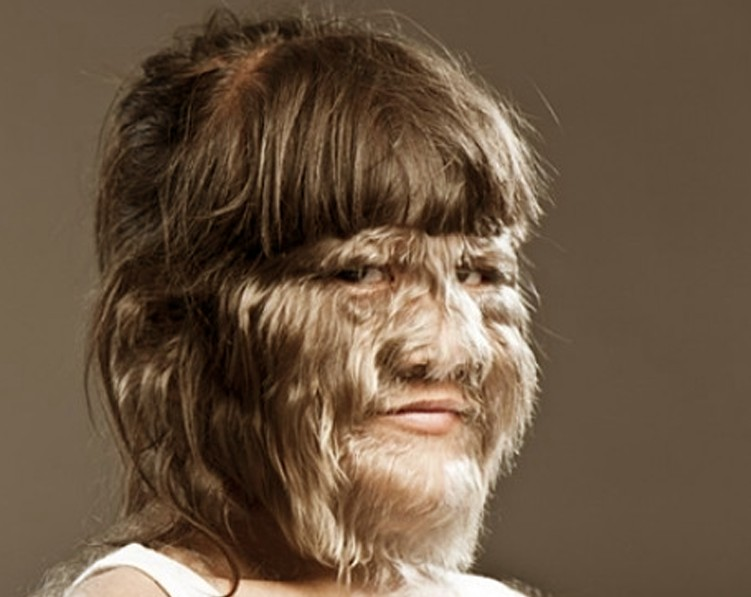 Hypertrichosis - Symptoms  Causes  Treatment  Pictures -  2019