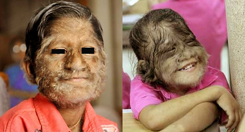 Hypertrichosis Symptoms Causes Treatment Pictures
