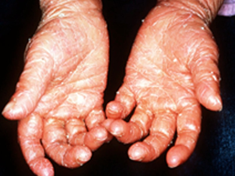 ichthyosis pictures 2