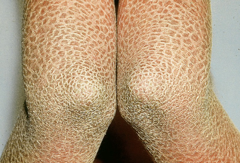 Ichthyosis - Pictures, Symptoms, Causes and Treatment ...