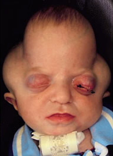 Pfeiffer syndrome - Pictures, Types, Symptoms, Causes ...