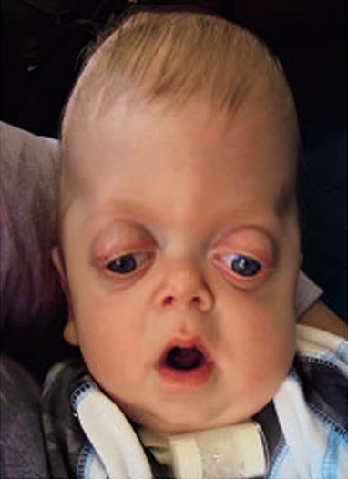 pfeiffer syndrome 3
