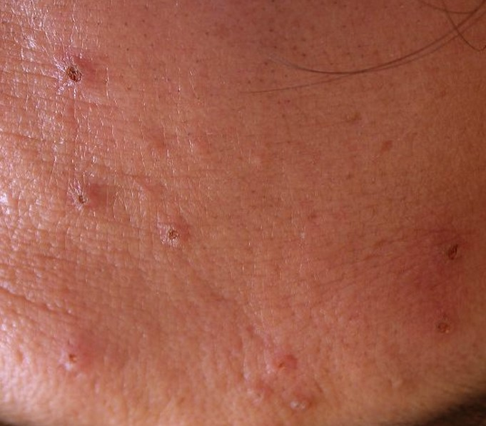 Sebaceous Hyperplasia Pictures Removal Symptoms