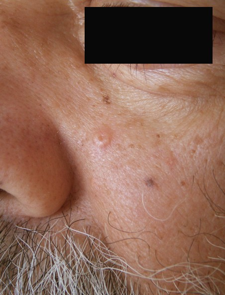 Sebaceous Hyperplasia - Pictures, Removal, Symptoms ... Sebaceous Cyst Face