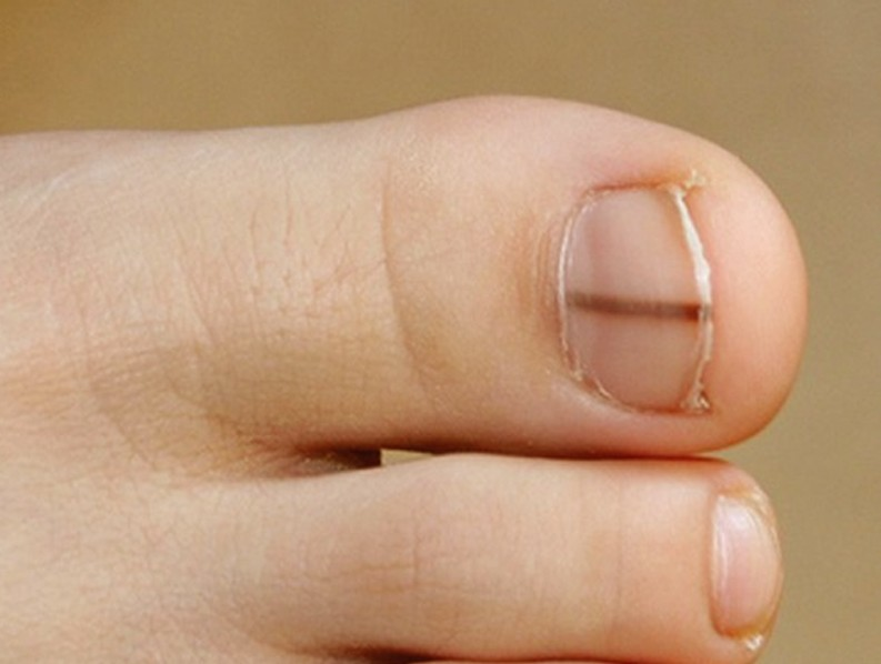Foot Melanoma: Causes, Symptoms and Treatments - Medical ...