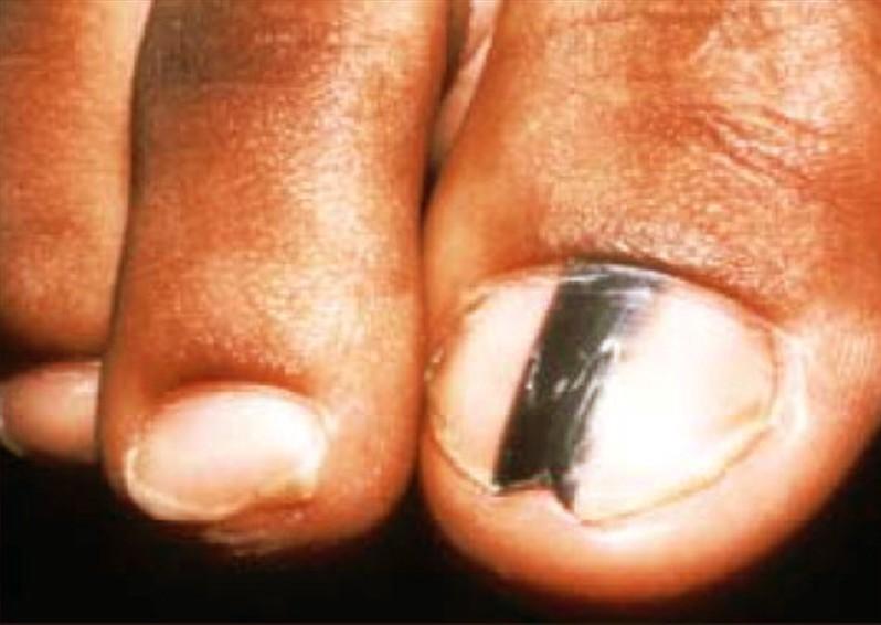 free local dating lines under fingernails