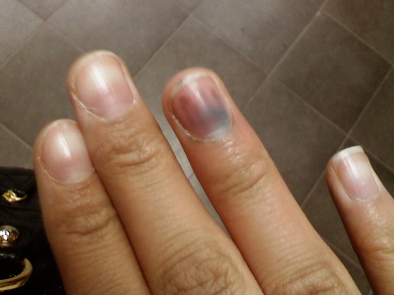 subungual melanoma pictures 5