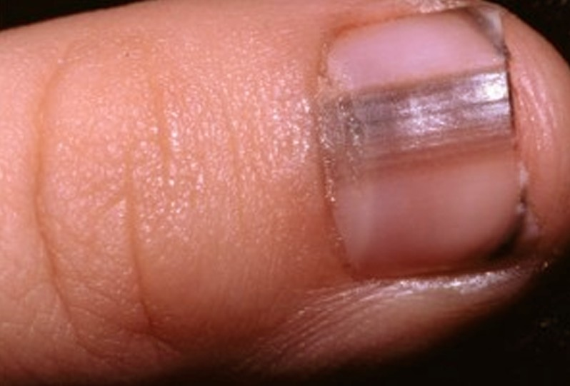 Melanoma Under The Nail Mimics Toenail Fungus