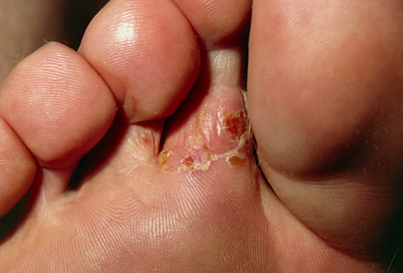 tinea pedis pictures 4