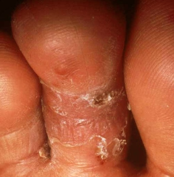 tinea pedis pictures 5