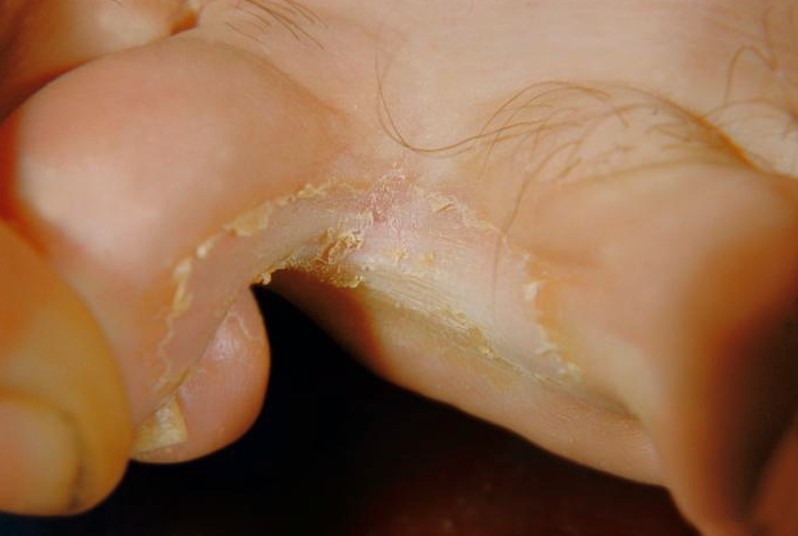 tinea pedis pictures 6