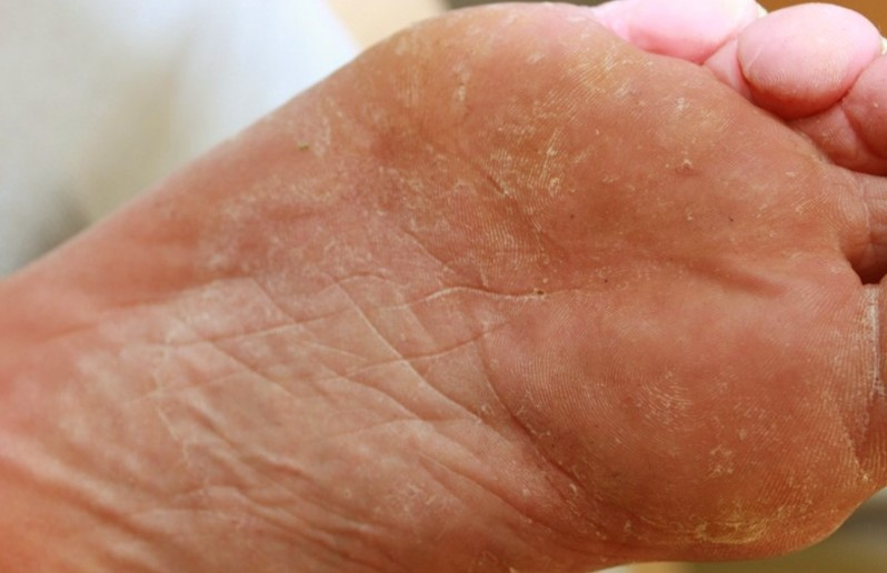 Tinea Pedis Treatment Pictures Symptoms And Causes