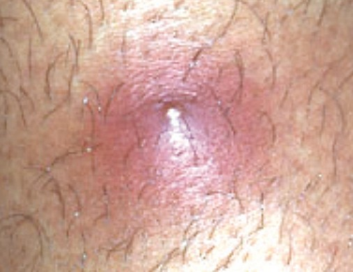 ingrown hair 2