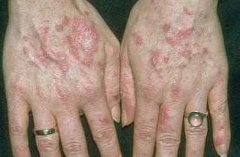 discoid lupus pictures 4