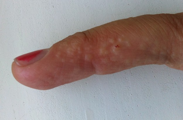 swollen hands & feet combined w/itchy rash - Neurological ...