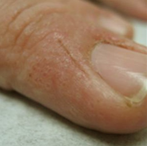 how to help heal blisters on feet fast