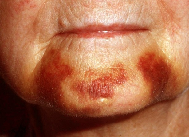 ecchymosis pictures 3