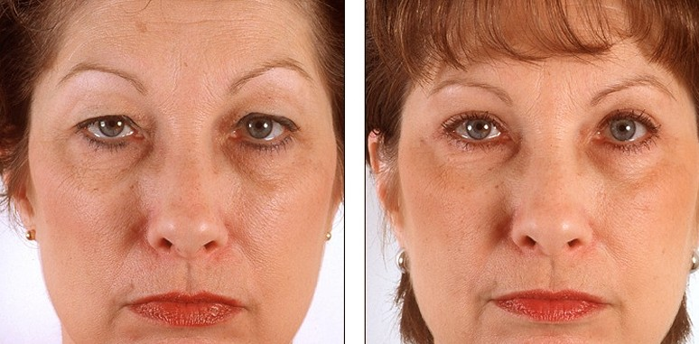 ▷ Eyelid Surgery - Photos, Recovery time, Procedure, Cost - (2019