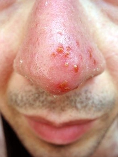 Genital Herpes   Are you exposed unknowingly to HSV2?