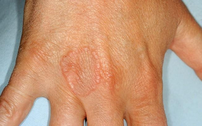 Capillaritis Natural Treatment
