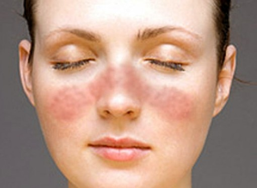 lupus rash pictures