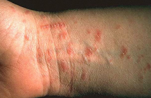 scabies rash pictures 2