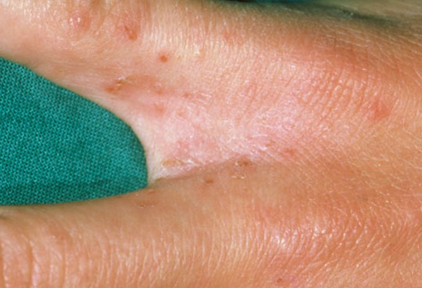 scabies rash pictures 5