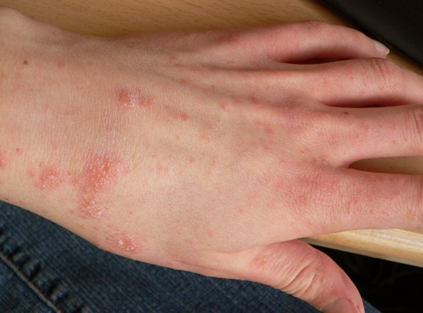 scabies rash pictures