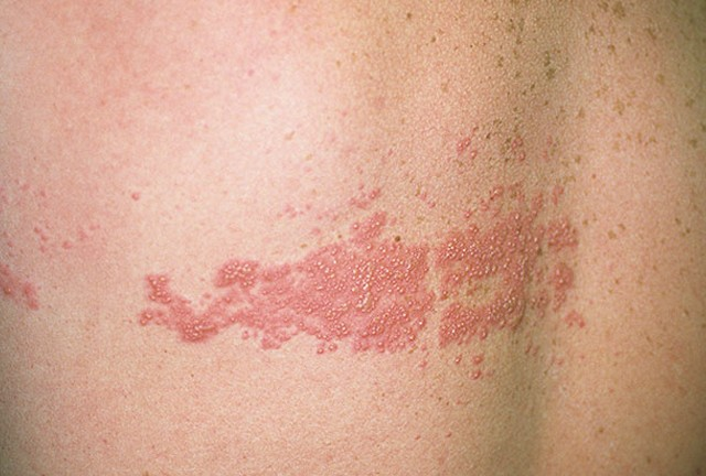shingles rash pictures 2