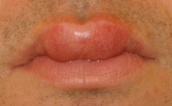swollen lips pictures 3