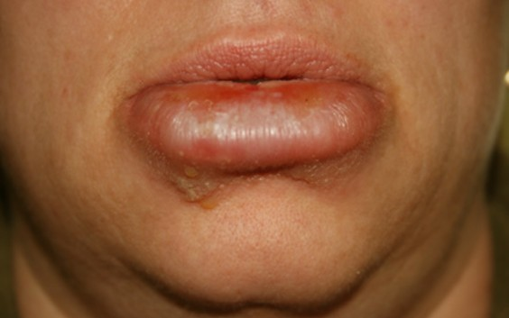 swollen lips pictures