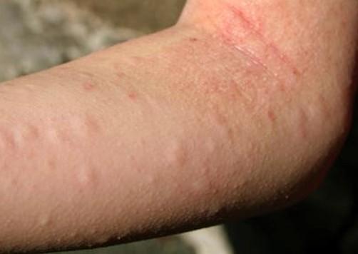 allergic reaction rash 6