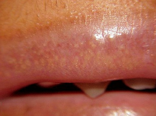 white spots on lips pictures 2