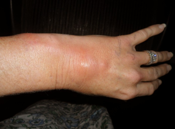 Phlebitis - Pictures, Symptoms, Treatment and Causes