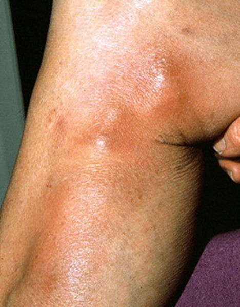 Phlebitis pictures symptoms treatment and causes