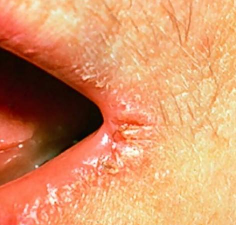 Angular Cheilitis Help » Diagnose, Treat & Cure Angular ...