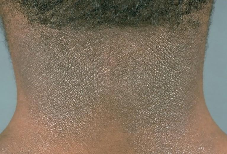 lichenification pictures 3