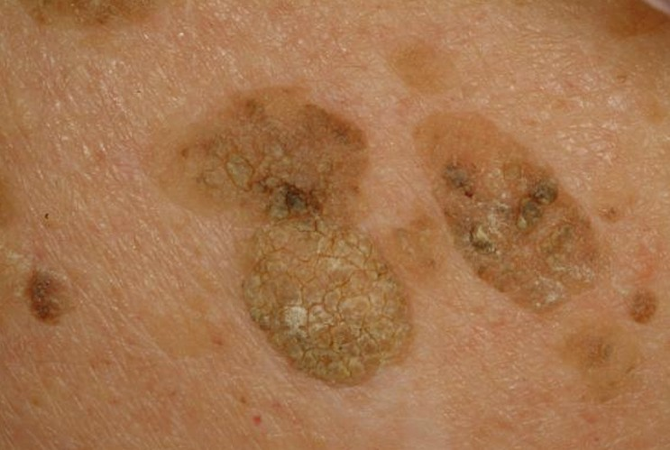 Liver Spots Pictures Face Skin Hands Causes