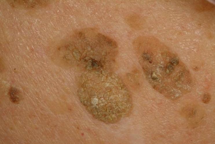 liver spots pictures 2