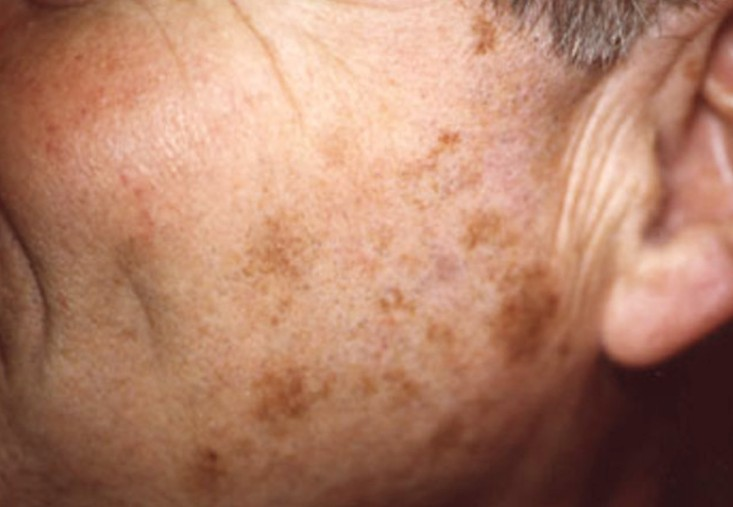 Liver Spots Pictures Face Skin Hands Causes Treatment