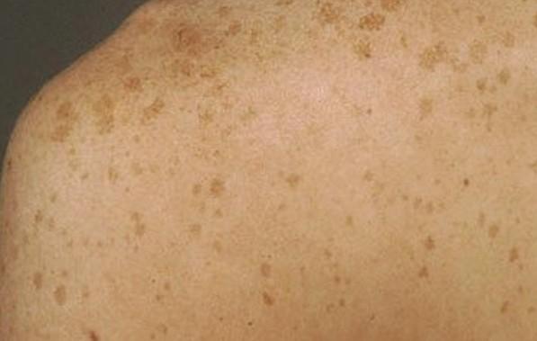 liver spots pictures 4