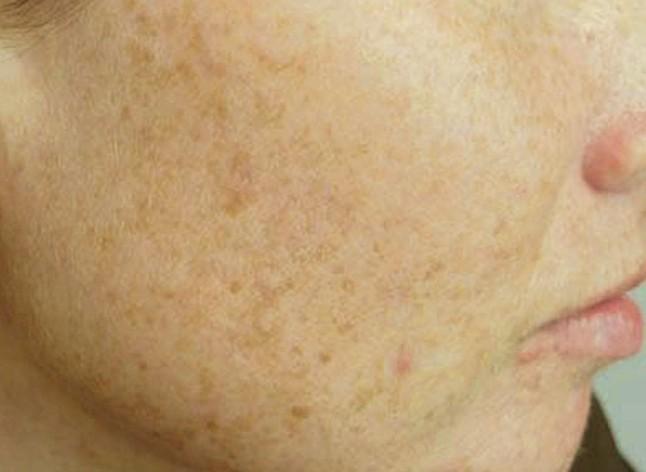 liver spots pictures 5