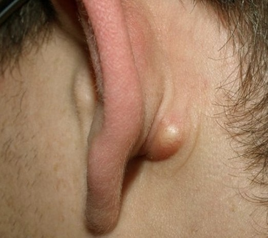 lump behind ear pictures 3
