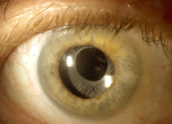 mydriasis pictures 2