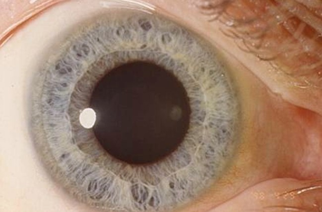 mydriasis pictures 3