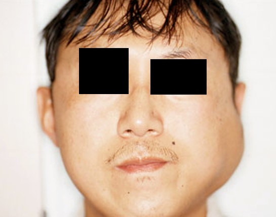 Parotid Gland Swelling - Symptoms, Pictures, Causes, Treatment