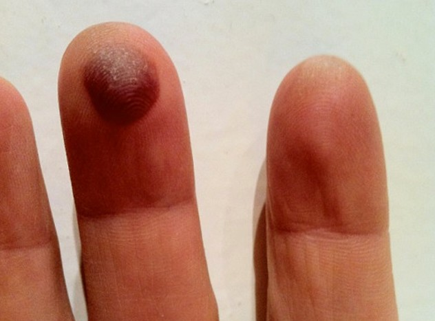 blood blister on finger pictures 2