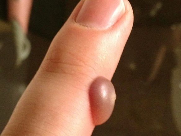 blood blister on finger pictures 5