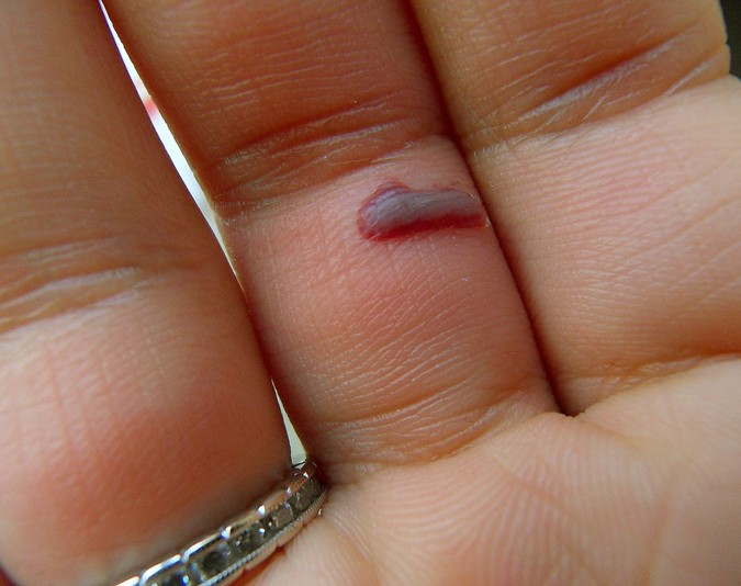 blood blister on finger pictures