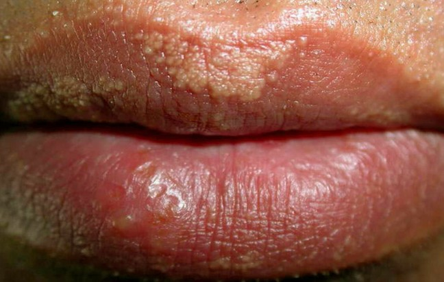 Lip Blisters - Causes, Symptoms, Treatment, Diagnoses ...